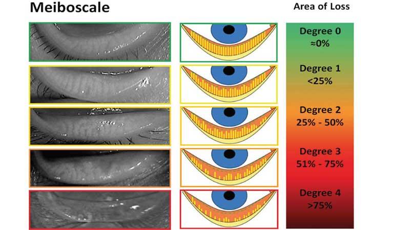 Dry Eye Disease Naples Fl Eye Care Of Southwest Florida